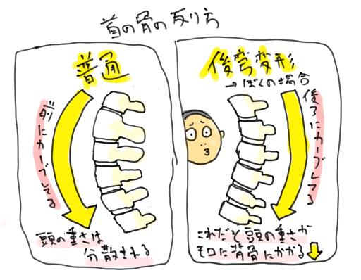 頚椎後弯変形