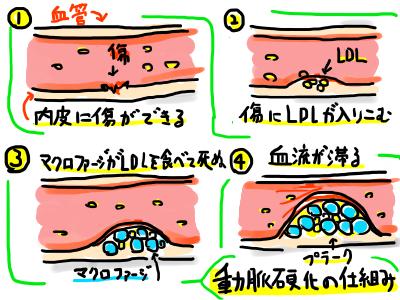 アテローム動脈硬化